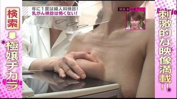 乳がん検診おっぱい丸出しTVエロキャプ画像1